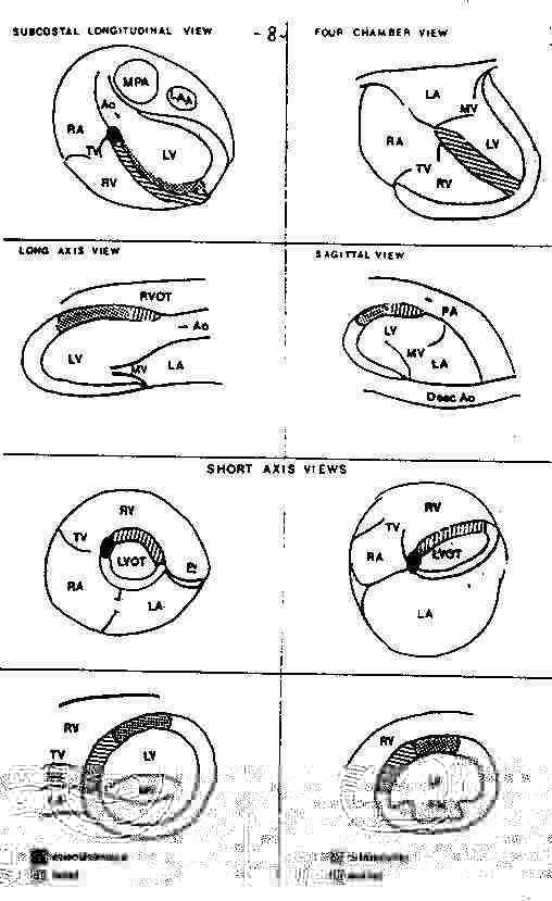Схема анатомических отделов