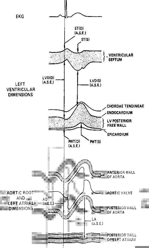 Схема измерения эхометрическихпоказателей в 1 и 4 позициях одномерной эхокардиографии по H.Feigenbaum.