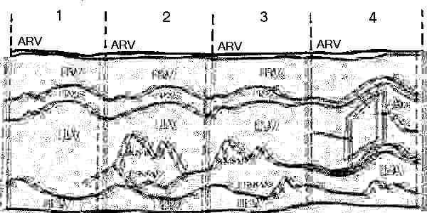 Схема стандартных позицийодномерной эхокардиографии по H.Feigenbaum.